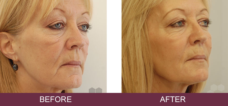 Ellanse Dermal Filler in Wells, Dochester & Plymouth