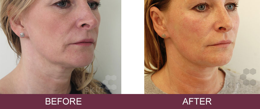 Silhouette Soft Thread Lifts – Non Surgical Face Lift   Skin