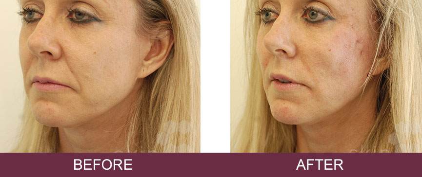 Silhouette Soft Thread Lifts – Non Surgical Face Lift | Skin