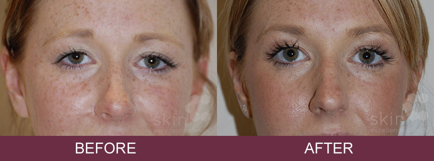 Anti-Wrinkle Injections - Skin Excellence Clinics
