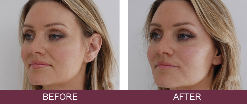 Dermal Fillers | Wells, Dorchester & Plymouth | Skin