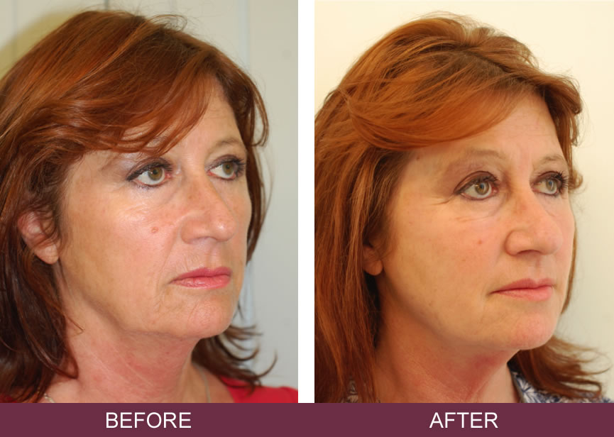 Silhouette Soft Thread Lifts Non Surgical Face Lift Skin