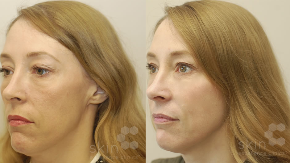 woman before and after the Vampire Facelift treatment