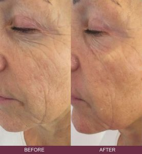 Tixel Mezotix Skin Rejuvenation - Skin Excellence Clinics